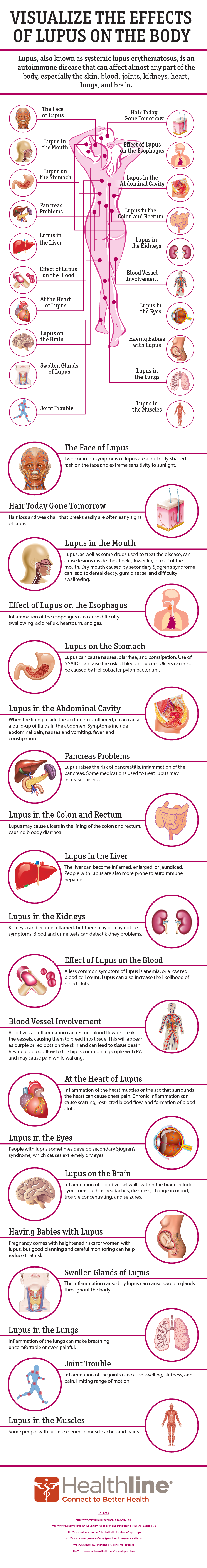 Effects of Lupus